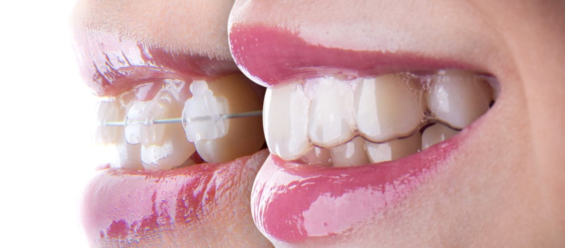 Invisaling e implantes dentales ¿son compatibles?